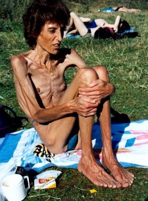 anorexic woman
