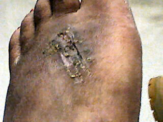 Angelika's Foot