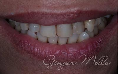 Quero Alinhar Meus Dentes Mas Nao Quero Usar Aparelho Araujo E