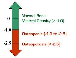 medidas para saber  grado de osteoporosis