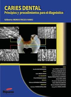Caries Dental: Principios y Procedimientos para el Diagnóstico   Gilberto Henostroza Haro