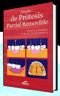 Diseño de Protesis Parcial Removible   David Loza Fernandez