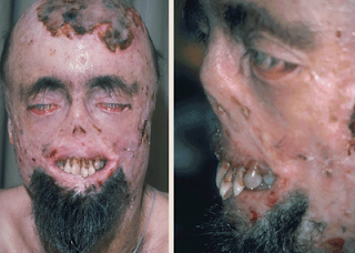 ¿La porfiria una enfermedad de vampiros? Porfiria
