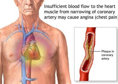 external image angina+-old+man.jpg