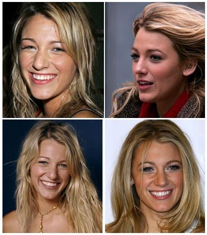 Blake Lively: Before & After her nose job. Before: