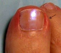 Pictures of ingrown toenails.
