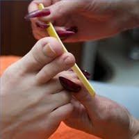 Images Ingrown toenail filing.