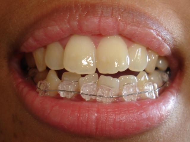 étudiant à jour ne en dentaire