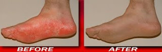 Athletes Foot before and after