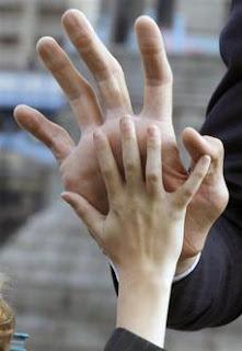 มือ ของ คนที่ตัวสูงที่สุดในโลก