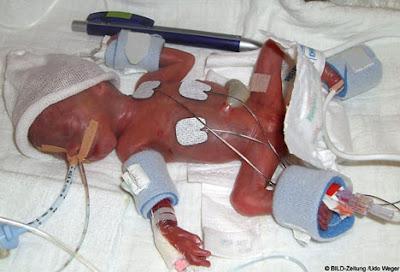 เด็กทารก ตัวเล็กที่สุดในโลก
