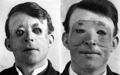 คนไข้ศัลยกรรมใบหน้า คนแรกของโลก (First plastic surgery case )