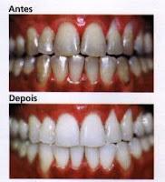 Curiousguys2 Clareamento Dental Caseiro E Laser Como Fazer E Precos