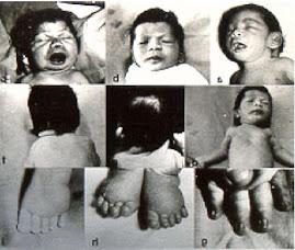 Niños con Síndrome de Turner