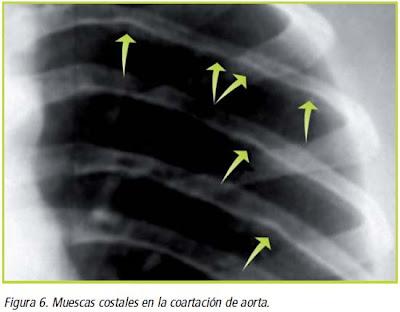 Figura 6. Muescas costales en la coartación de aorta.