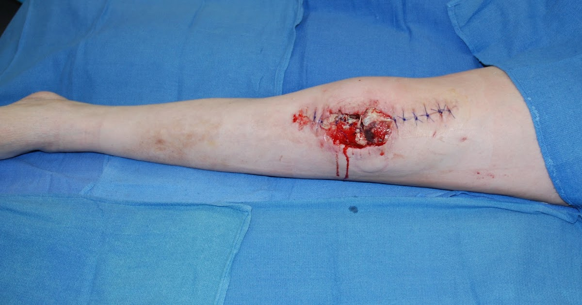 wound infection post total knee replacement surgery Whilst improvements in patient care have reduced the risk of infection in patients undergoing prosthetic joint surgery, the substantial and growing n these include surgical technique, presence of tissue trauma, duration of operation, skin preparation, nasal decolonization, post-operative wound care and.