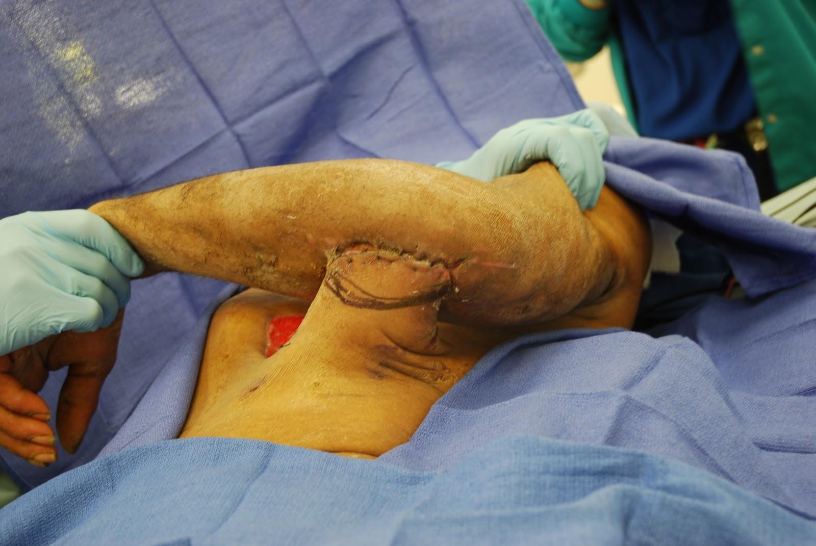 flap surgery #10