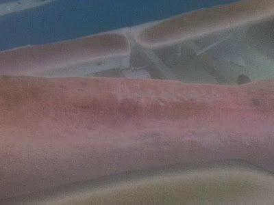 blue waffles disease wikipedia. lue waffles disease pics. lue