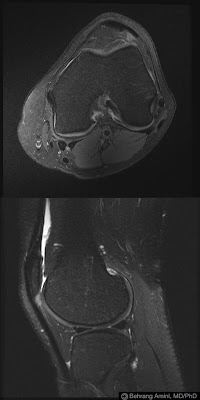 Coding patellofemoral chondrosis in icd 9 cm and icd