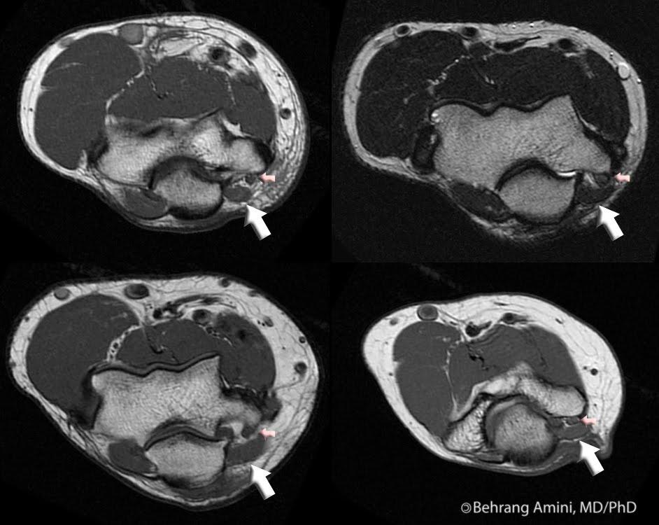 Roentgen Ray Reader: Anconeus Epitrochlearis Muscle