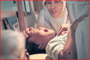seorang wanita menenangkan anaknya dalam satu prosedur berkhatan