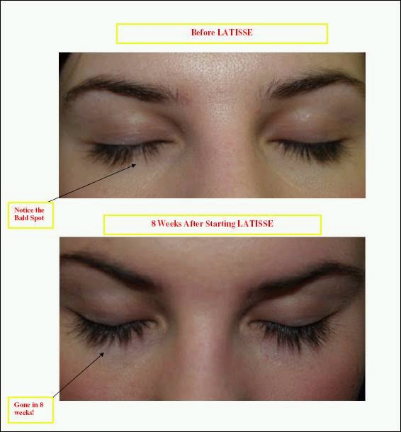 Susies Silktouch Blog Are Your Eyelashes Thin Or Short Latisse Is