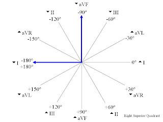 cardiac axis determination  u2013 part 6