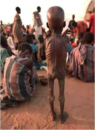 ethiopians and the problem of starvation Starvation, hungry, malnourishment - the effect of the ethiopian famine.