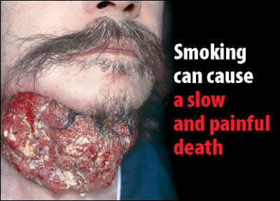 cancer caused by smoking