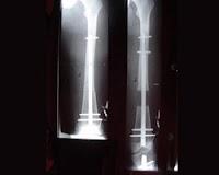 Metode Baru Meluruskan Tulang