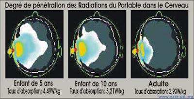irradiation cerveau portable.jpg