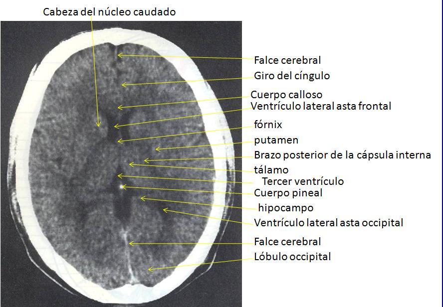 Anatomía UNAM: IMÁGENES DE TOMOGRAFÍA