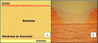 camadas histológicas da córnea e de uma córnea com úlcera