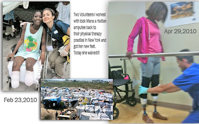 Volunteer Ministers help  Haitian Amputee