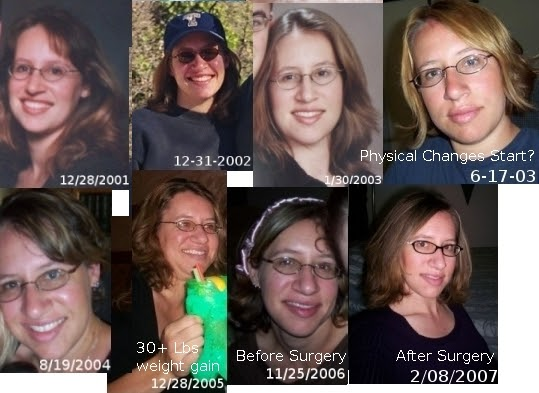 Acromegaly Ramblings: Picture Timeline