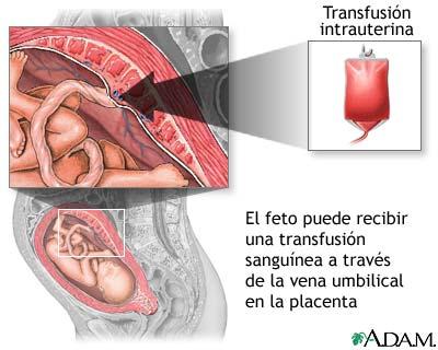 informacion medicina grupo sanguineo bebe: