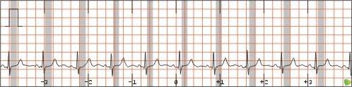 Segmento ST en Electro-CardioGrama