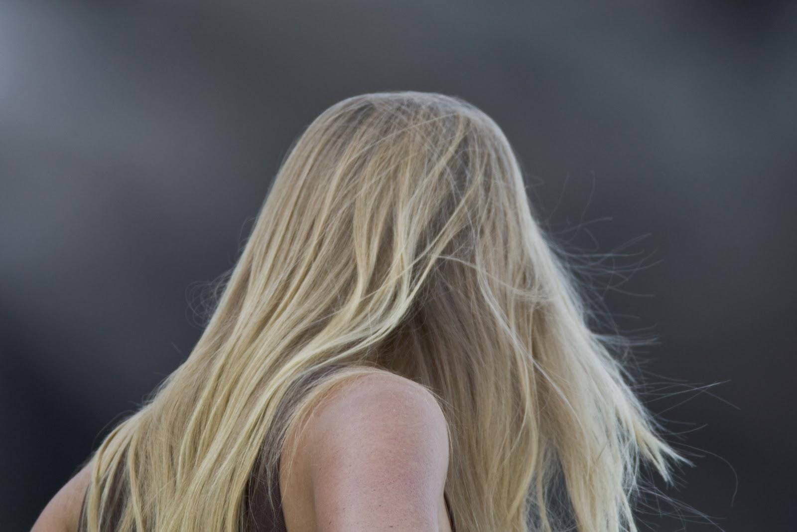 Выпадение волос железо йод