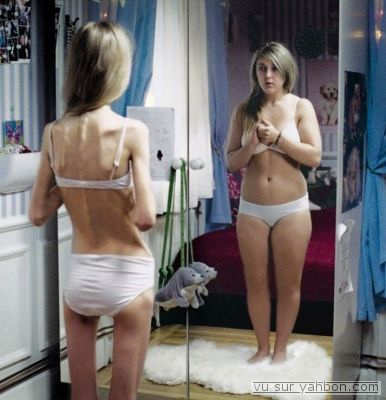 causas de la bulimia. CAUSAS DE LA ANOREXIA NERVIOSA
