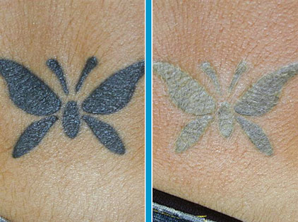 vanish-ink laser tattoo removal
