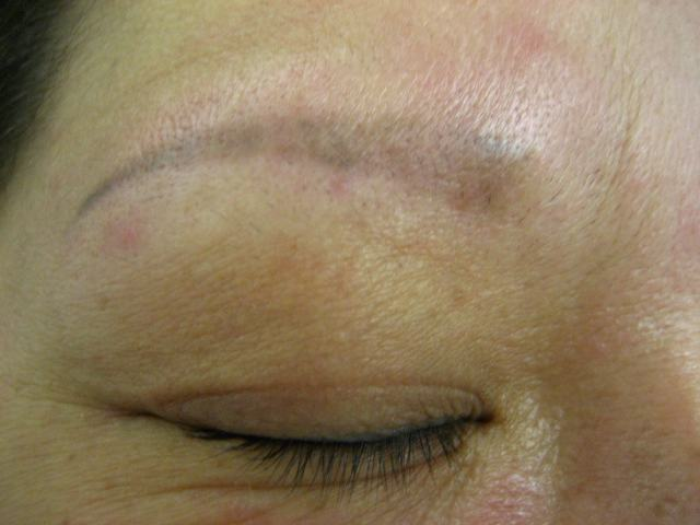 Remove Eyebrow Tattoo At Home Homemade Tattoo Removal Remedies