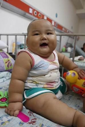 Bebé Chino que pesa 20 Kilos