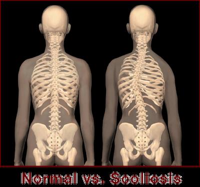 Kelainan Dan Gangguan Pada Tulang Suatu Gangguan Pada Tulang