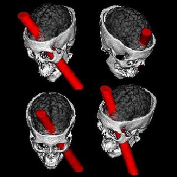 external image phineas_gage_from_uiowa_d_neurology.jpg