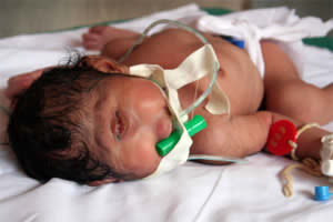 One Eyed Baby Born in India