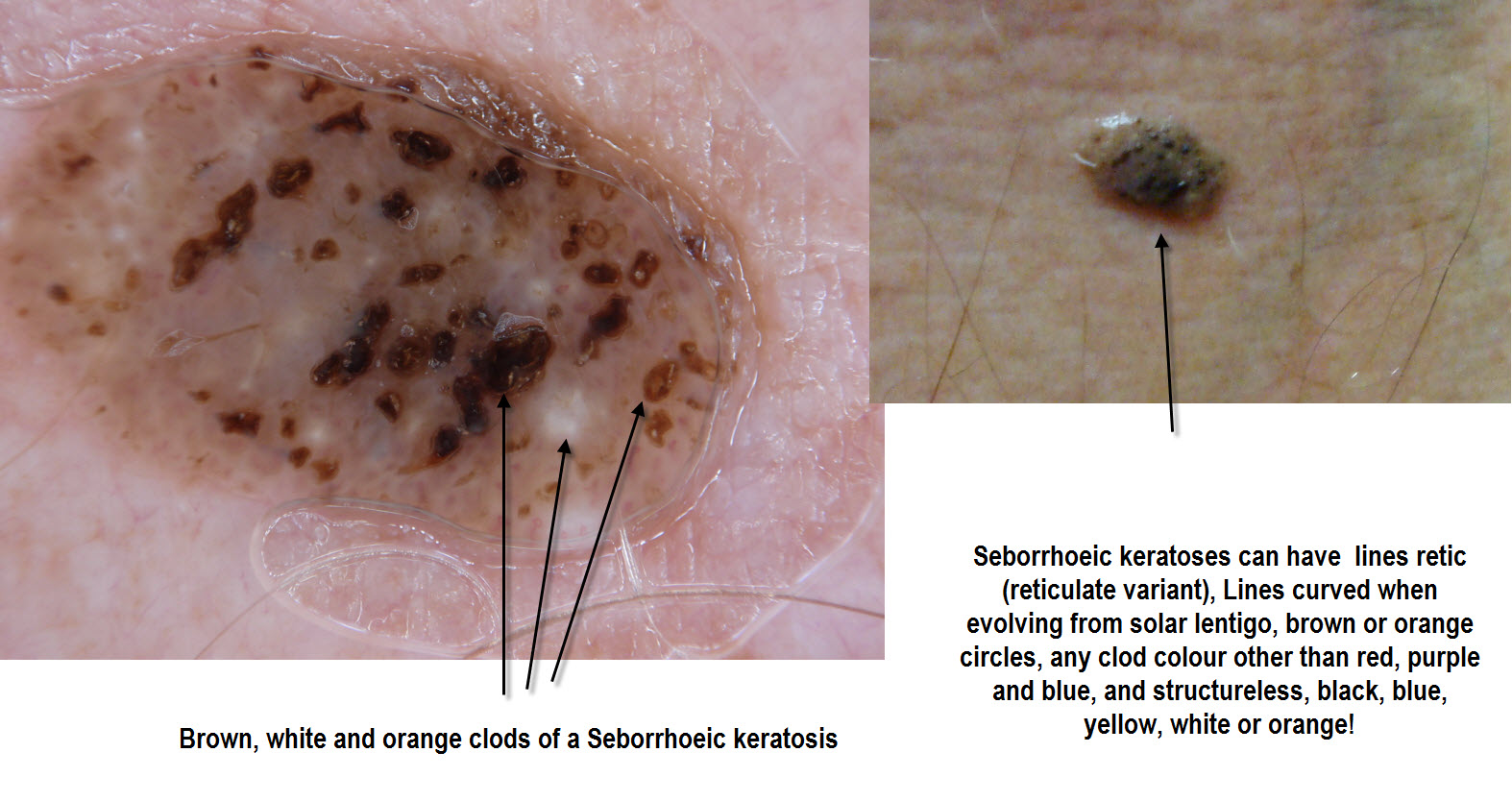 Dermoscopy Made Simple: Seborrhoeic Keratoses