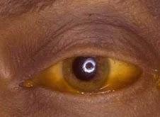 Olhos de uma pessoa com Icterícias