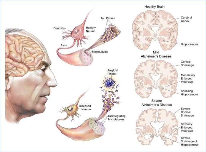 Notícias Importantes Alzheimers-disease
