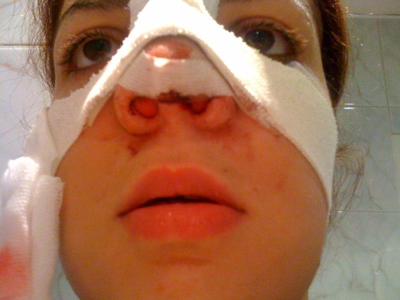 Ma rhinoplastie: Jour de l'OPERATION
