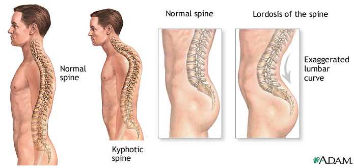 Clinical Examination Of The Spine Ivline
